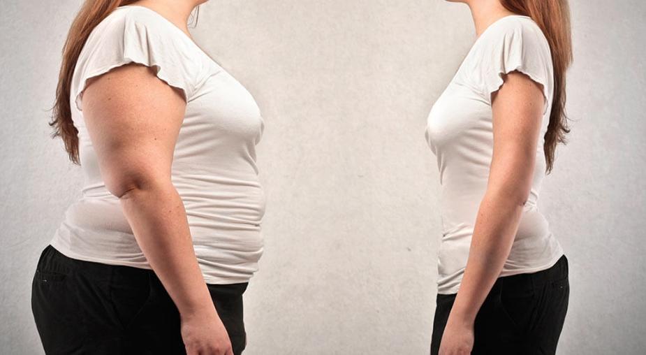 Trattamento e Cura di pazienti Obesi e in Sovrappeso